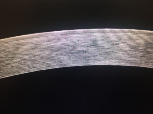HD OCT Cornea in Keratoconus