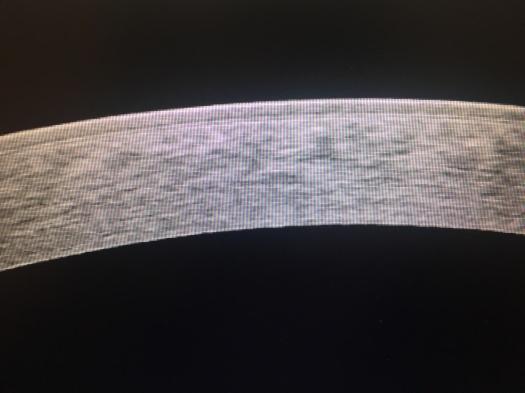 HD OCT Cornea in Keratoconus