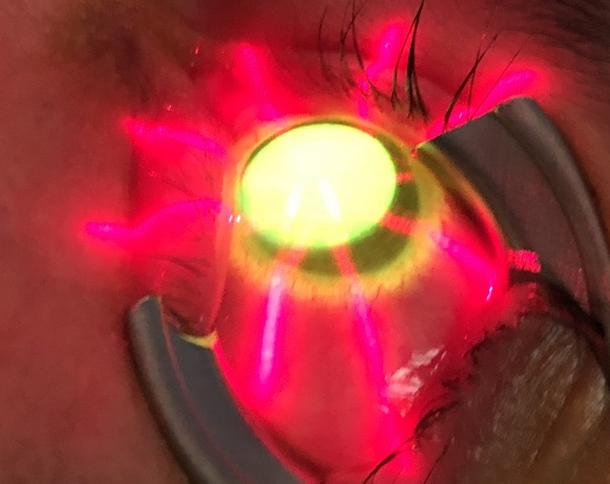Los Angeles Keratoconus
